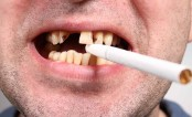 Smoking increase risk of tooth loss